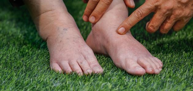 ما هي أعراض ارتفاع نسبة الأملاح في الجسم موسوعة العقيقي Alaqiqi